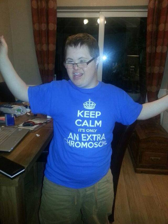 best-viral-pictures-extra-chromosome