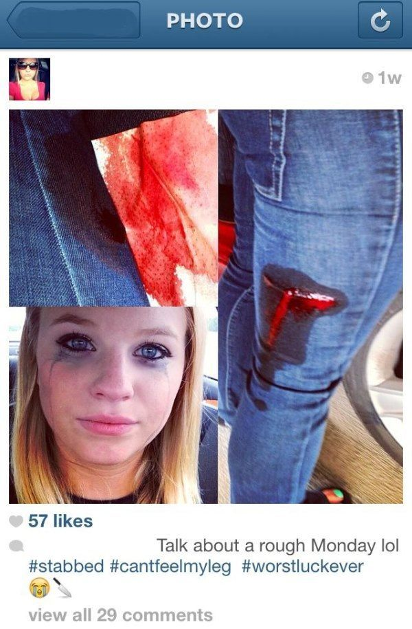 best-viral-pictures-instagram-injury