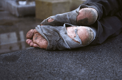 runt.ryan.homelessfeet