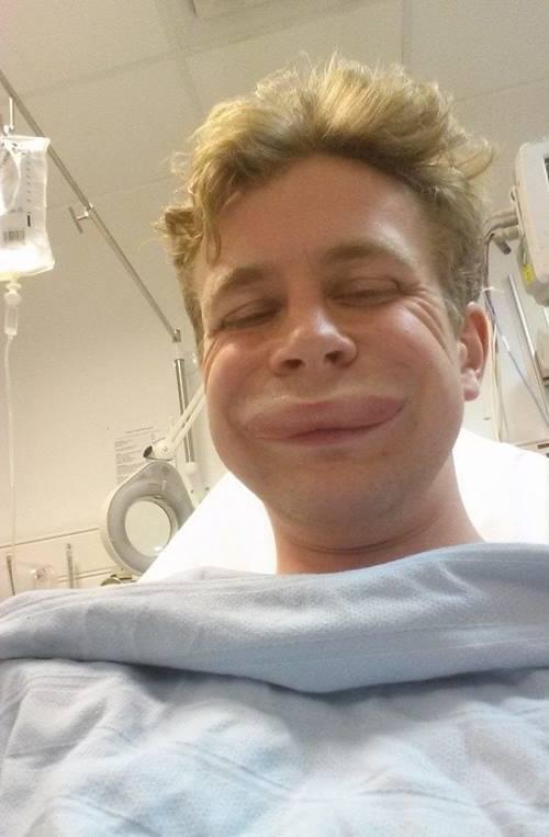 Surgery Selfie