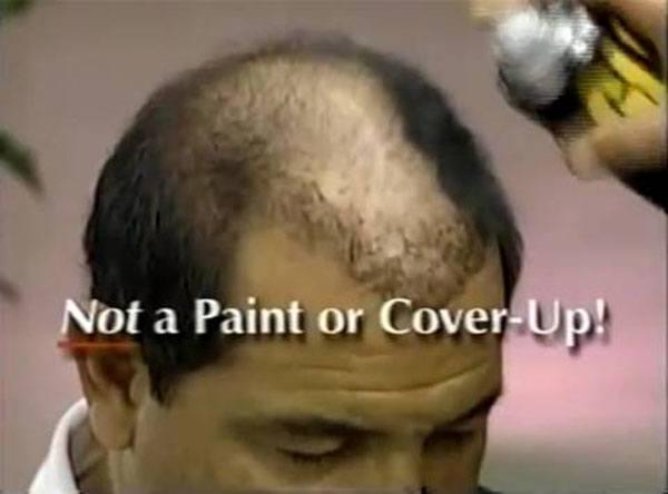Glh Hair System
