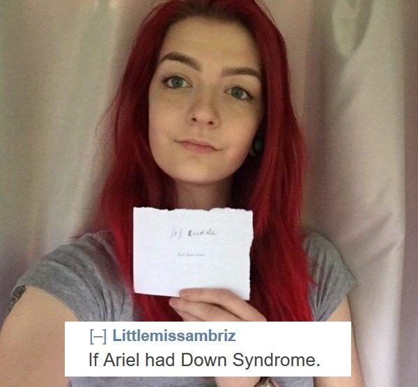 Down Syndrome Ariel