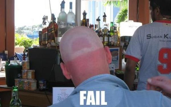 Funny Sunburns Hat