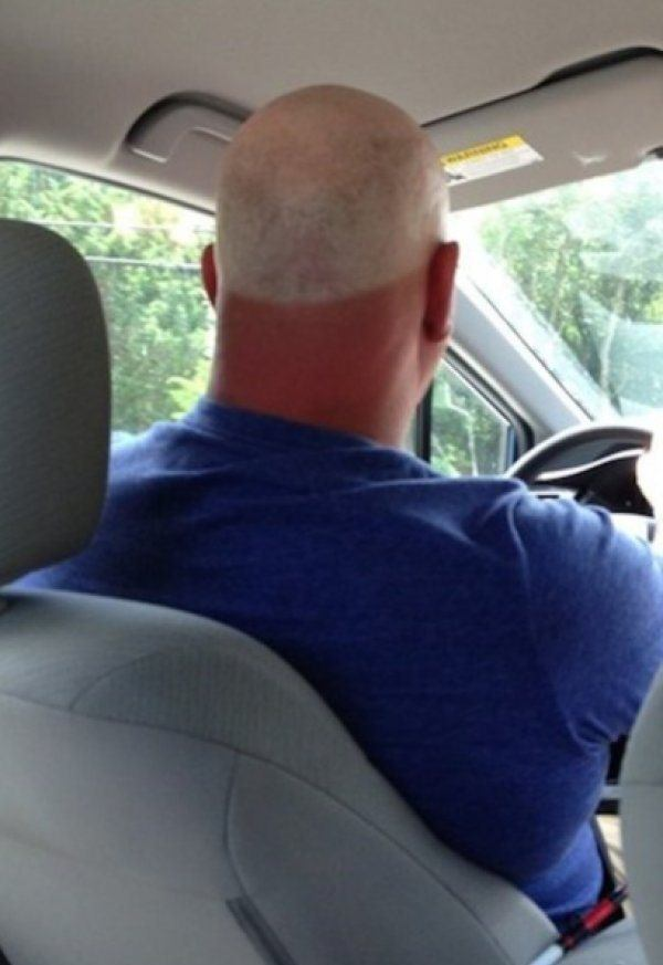 Funny Sunburns Head