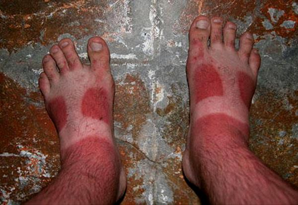 Painful Funny Sunburns