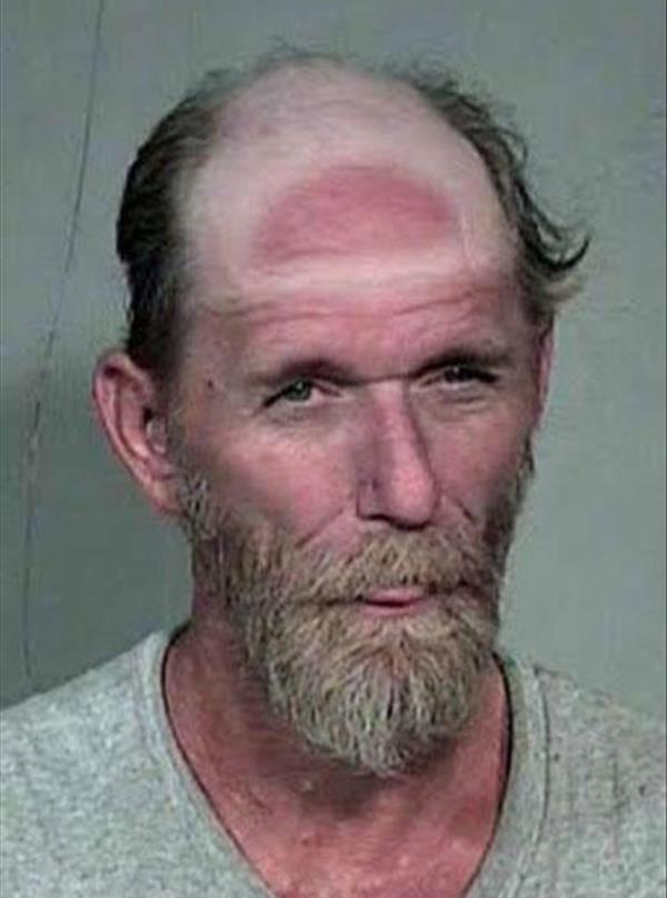 Sunburn Fails