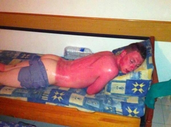 Unfortunate Sunburn