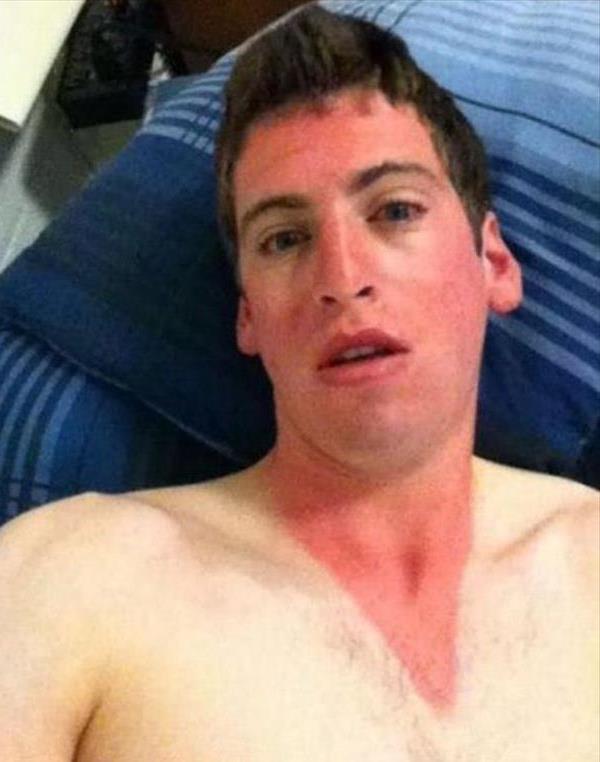 Worst Sunburn Ever