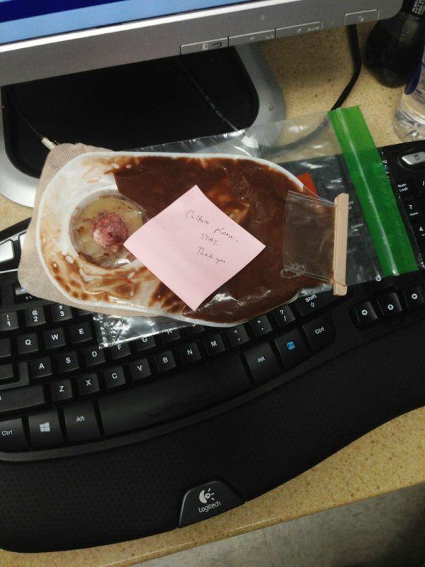 Chocolate Pudding Colostomy Bag