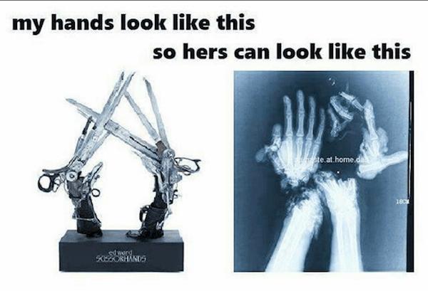 Scissor Hands
