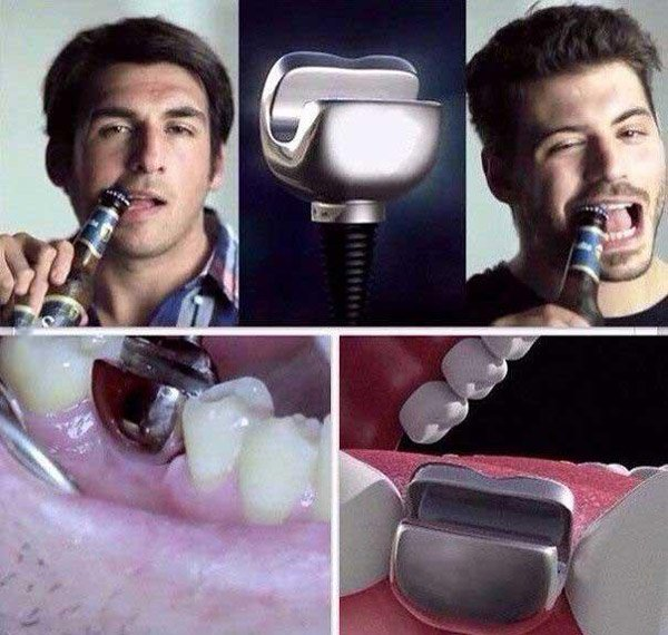 Tooth Bottle Opener